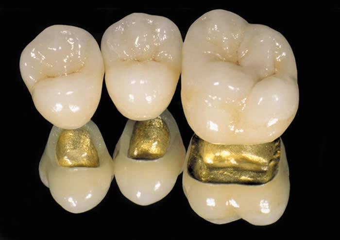 металлокерамика, протезирование зубов металлокерамика, металлокерамика цены, металлокерамика цены Кировск, протезирование зубов металлокерамика цены